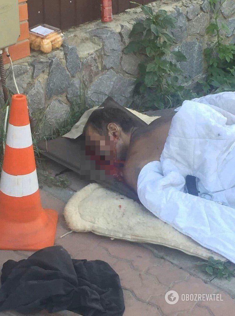 В Сумах застрелили экс-чиновника: фото 18+