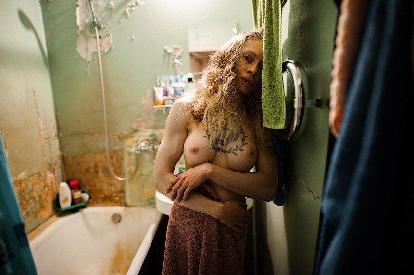 Рина Драгунова після операції