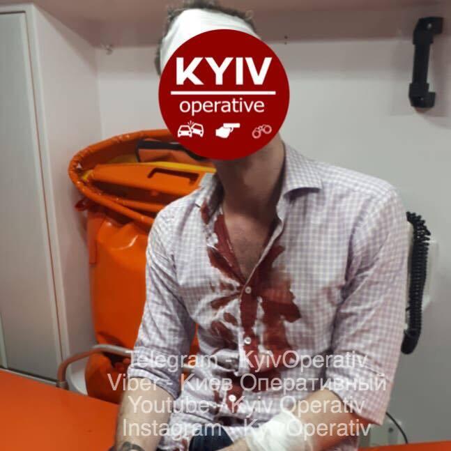 У Києві чоловік із шаблею порізав хлопця