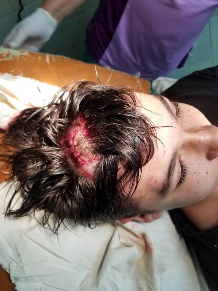 На Киевщине тиран зверски избил жену и детей