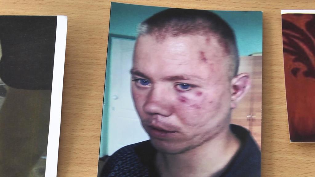 Журналістку жорстоко побили під час зйомок в інтернаті