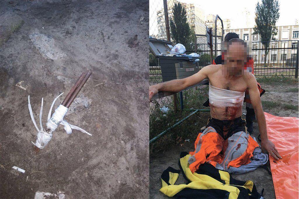 В Киеве возле школы нашли мужчину в крови: фото