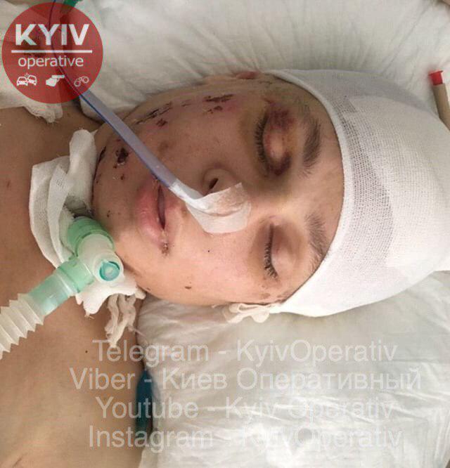 Рухнула с высоты: в Киеве нашли искалеченную женщину с татуировкой