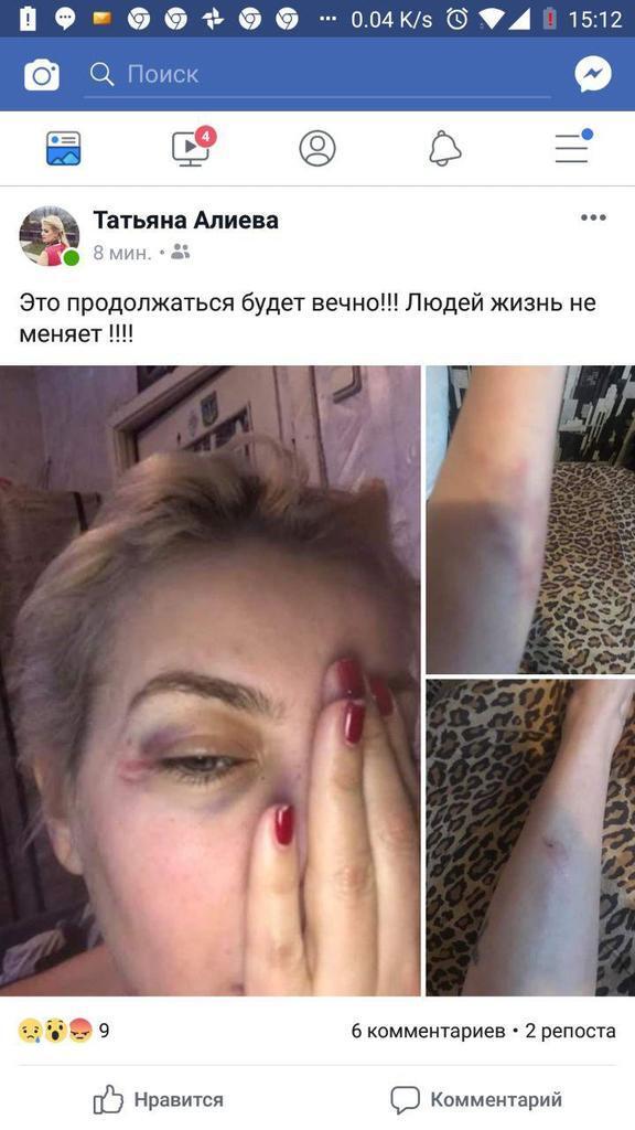 Скандальный экс-динамовец Алиев избил свою бывшую жену