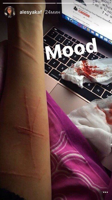 ''Хочу умереть'': Кафельникова изрезала себя после передоза