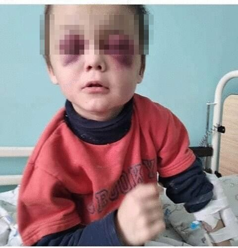 Мальчика госпитализировали прямо из электрички