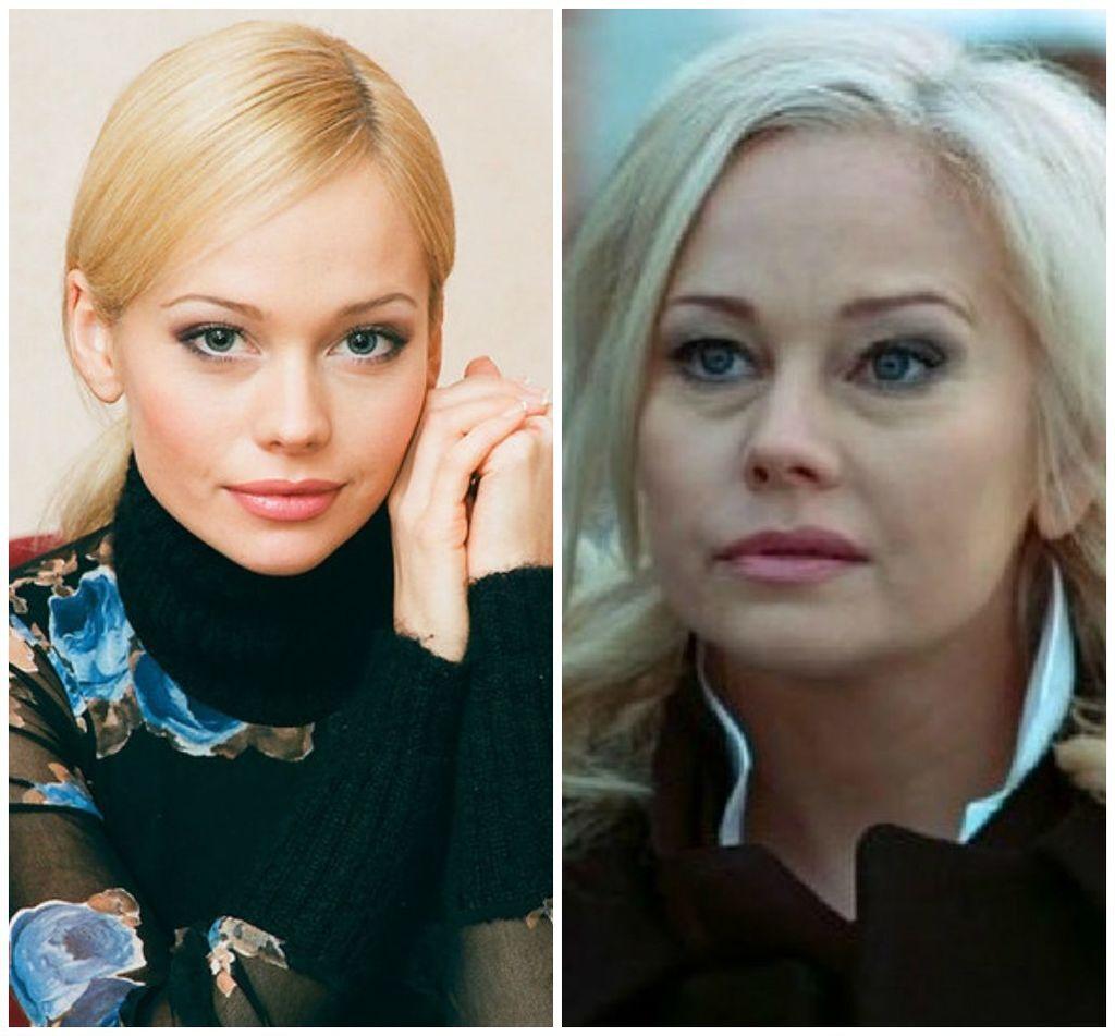 Звезда кино из РФ ужаснула поклонников внешностью