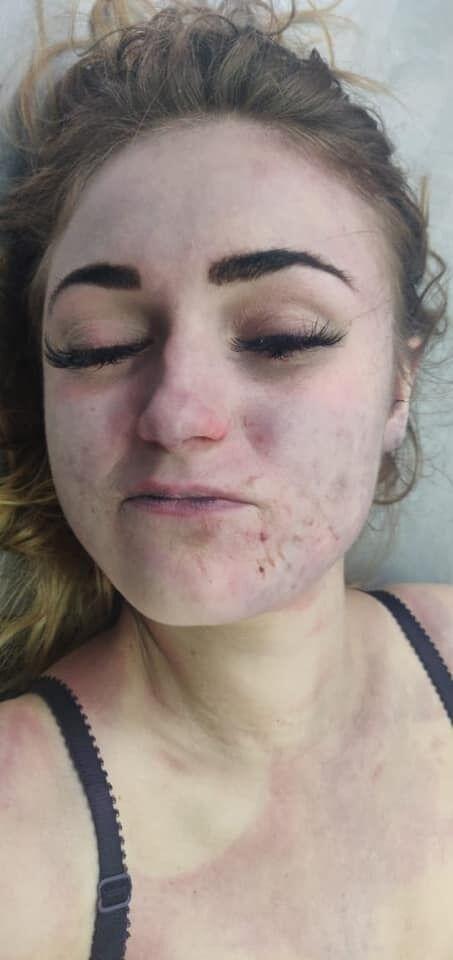 Полиция просит опознать найденную в чемодане в Днепре девушку: фото 18+