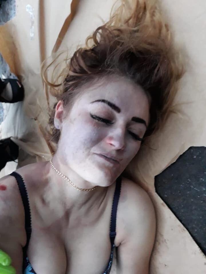 ''У 17 зґвалтували'': подробиці про знайдену у валізі дівчину