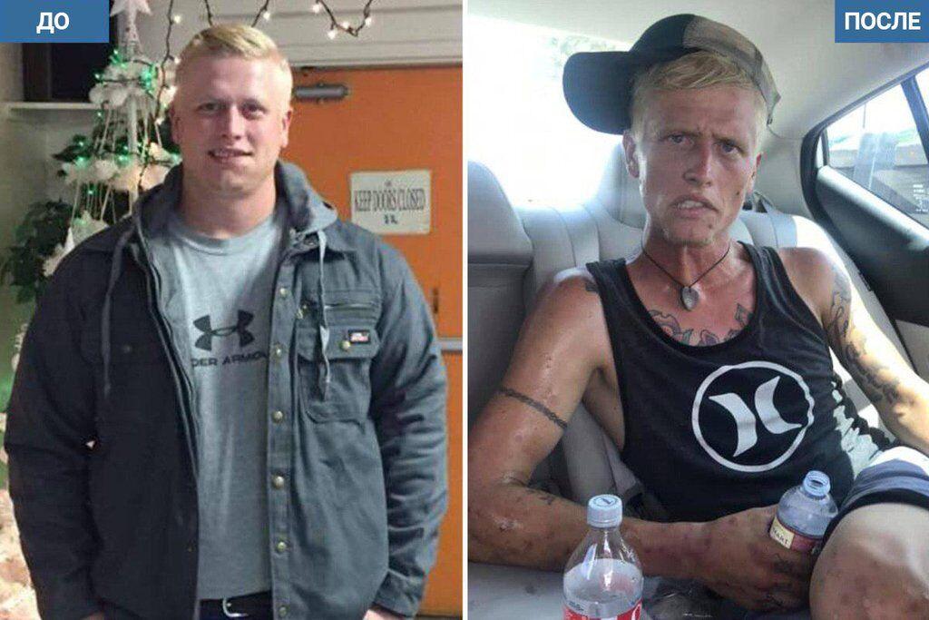 Коди Бишоп до и после наркотиков