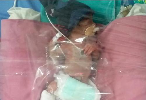 В Индии женщина родила в 75 лет недоношенную девочку