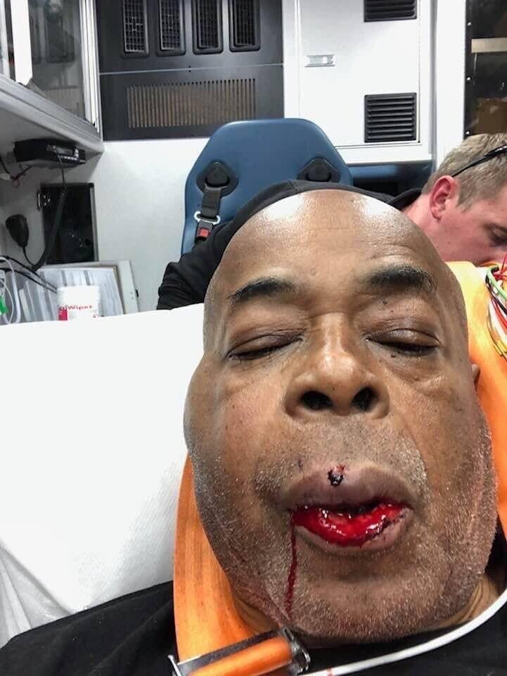Экс-тренера Усика и Кличко жестко избили, сломав лицо - опубликовано видео и фото