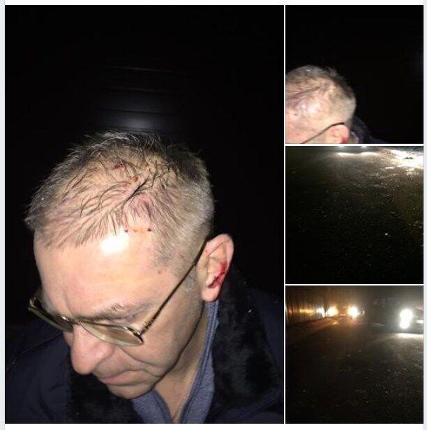 """Сергій Пашинський виклав у Facebook підтвердження його """"поранення в голову"""""""