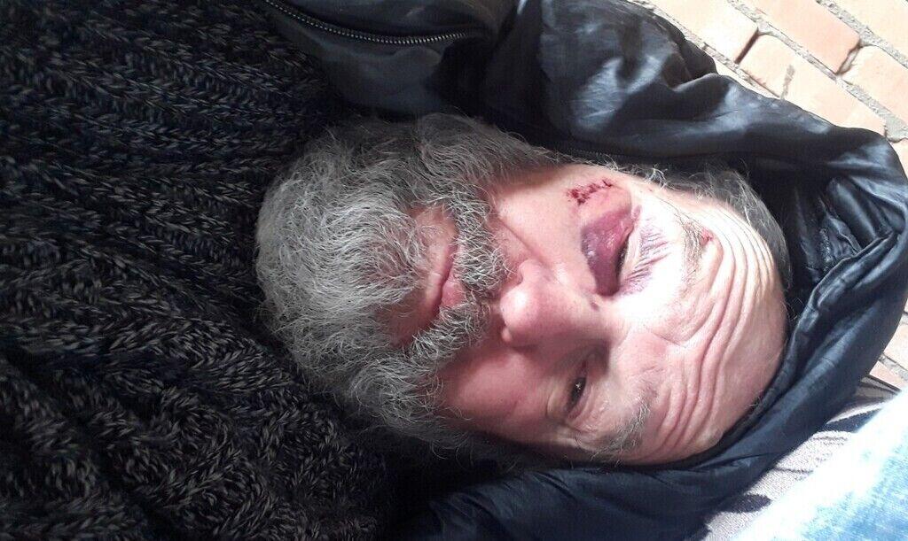 Даниил Лисовин после нападения