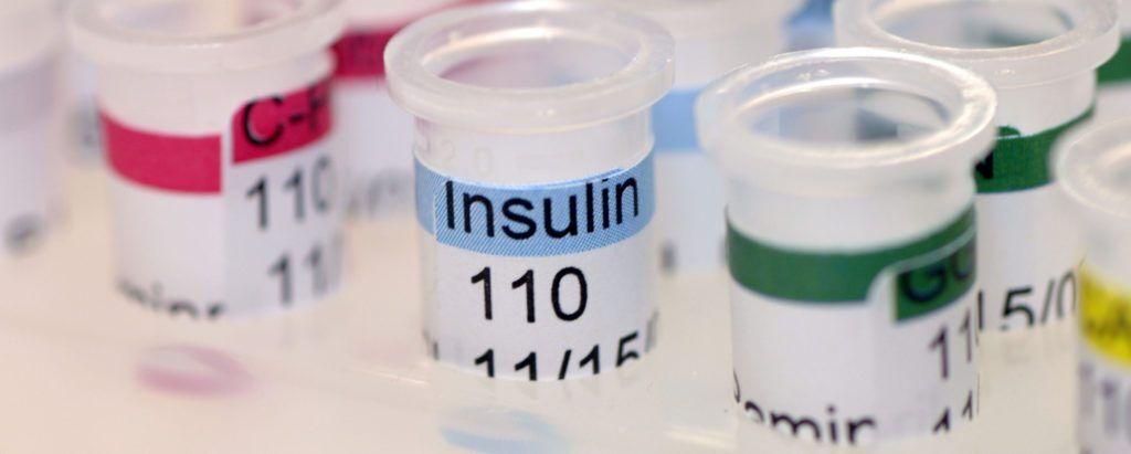 Анализ на определение уровня инсулина