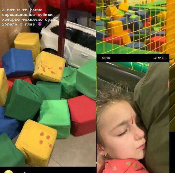 В Днепре девочка рассекла лицо в игровом центре