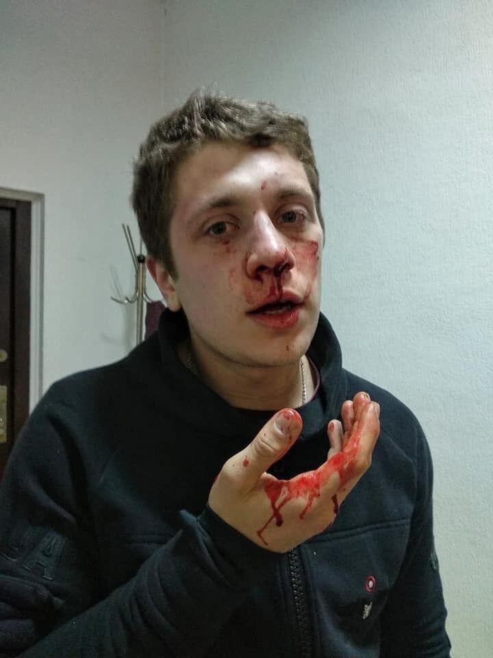 В Днепре неизвестные в балаклавах жестоко избили двух активистов