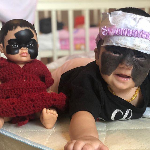 """Дівчинці з """"маскою Бетмена"""" зробили унікальну операцію"""
