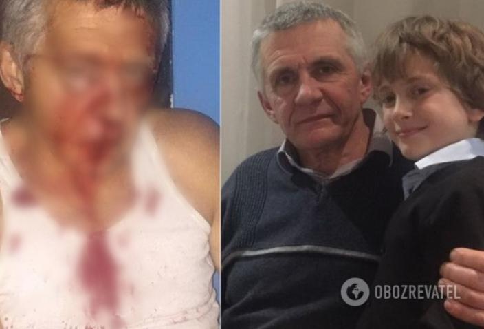 Николай Черненький (с внуком) - до нападения и после. Школьник стал свидетелем нападения на дедушку