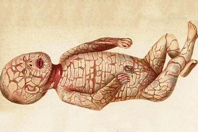 Harlequin-type ichthyosis (ихтиоз Арлекина)