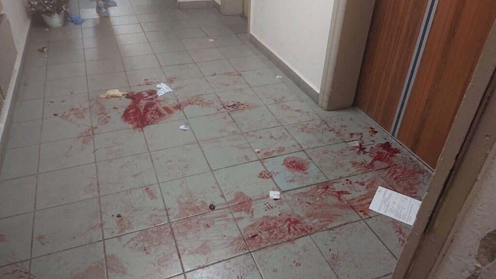 Соседи спустили окровавленного Николая на 1 этаж и передали врачам скорой
