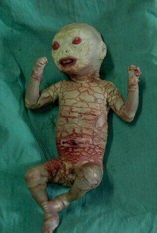 Медики несколько раз в день смазывают тело Джованино увлажняющим кремом, чтобы его кожа не пересыхала и не подвергалась повреждений