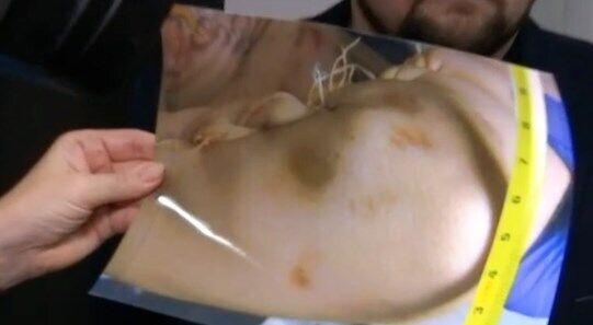 Родители привели доказательства убийства 14-летнего подростка из Прилук