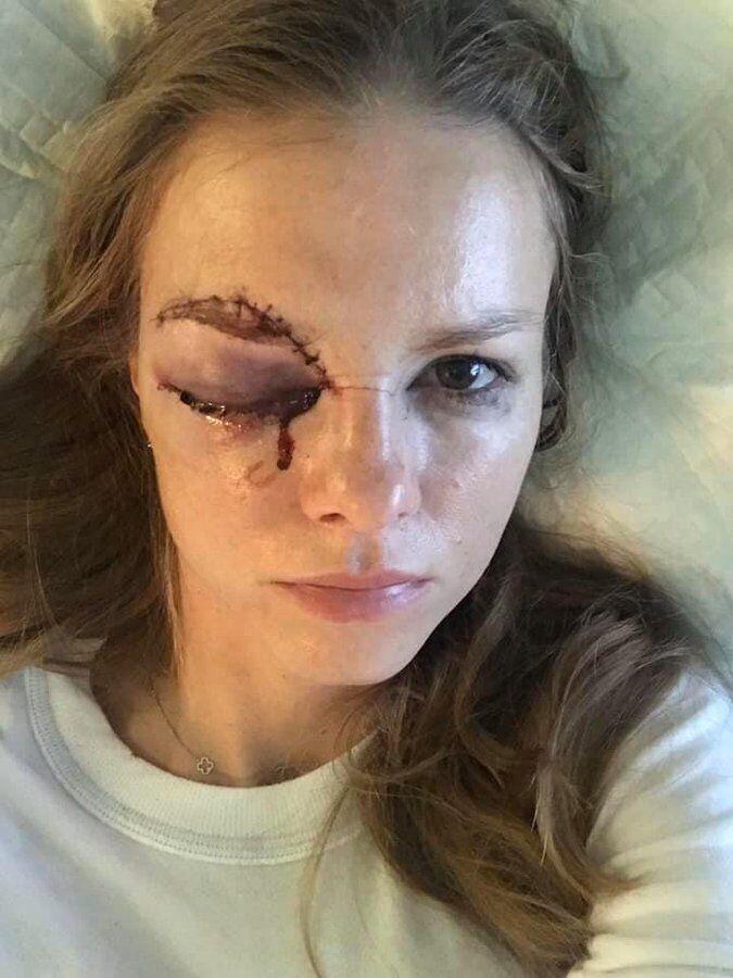 Барбора Жачікова в лікарні