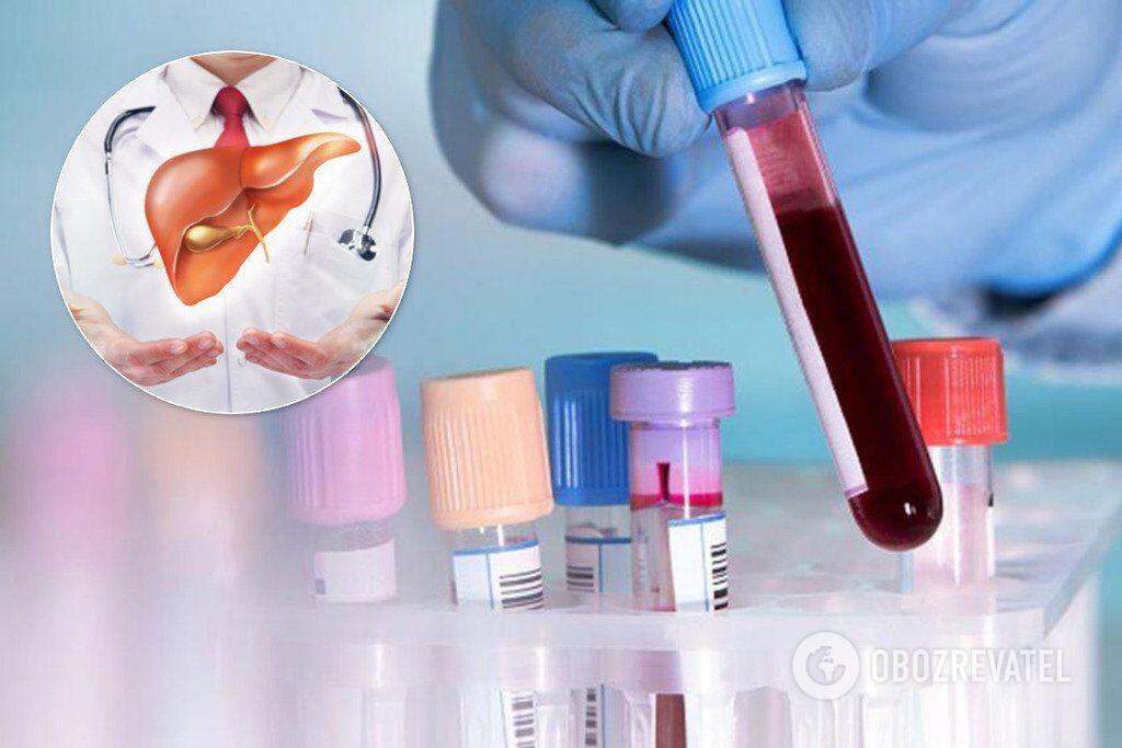 Аналіз крові: печінкові проби