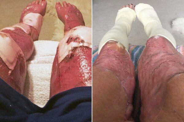 Ноги Джейни Насименто после операции