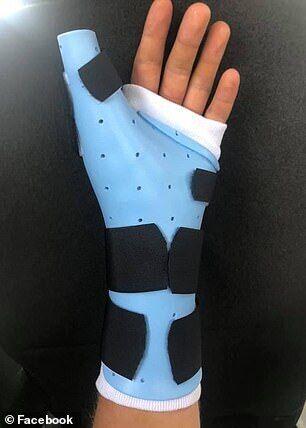 Эйден Адкинс – рука после операции