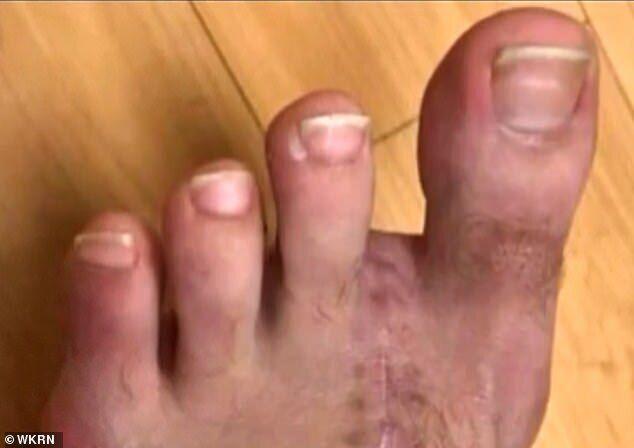 Эйден Адкинс – нога