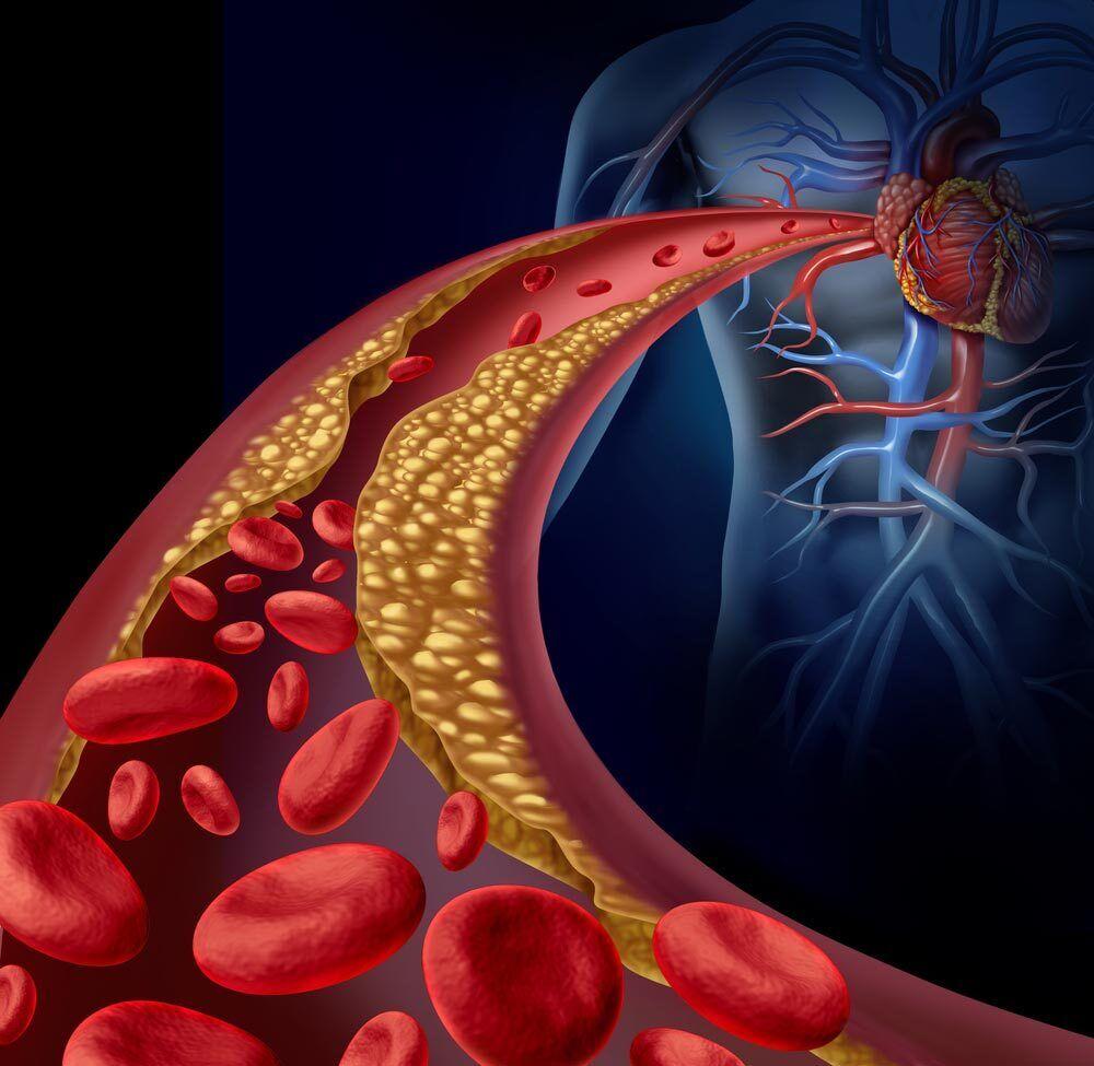 У 25 років рекомендують почати стежити за холестерином у крові