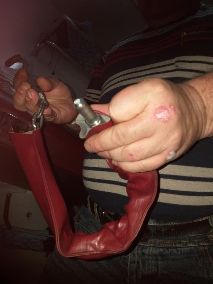''Пассажирка полгода не сможет работать, а тараканов травить нечем'': в украинских поездах становится опасно