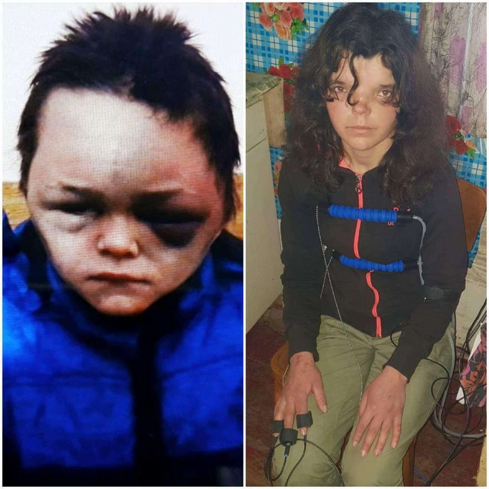 На Вінниччині побили 6-річну дитину: розкрилася страшна правда