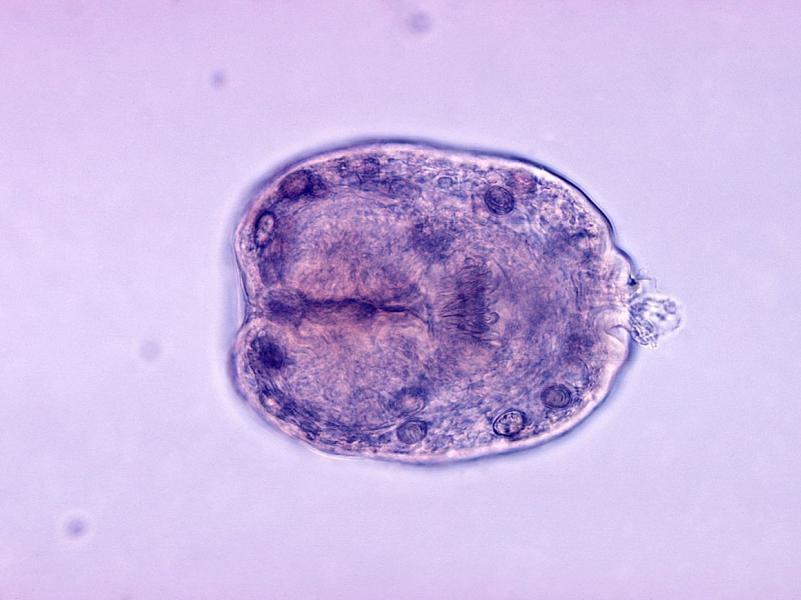 Гистологический препарат Echinococcus granulosus
