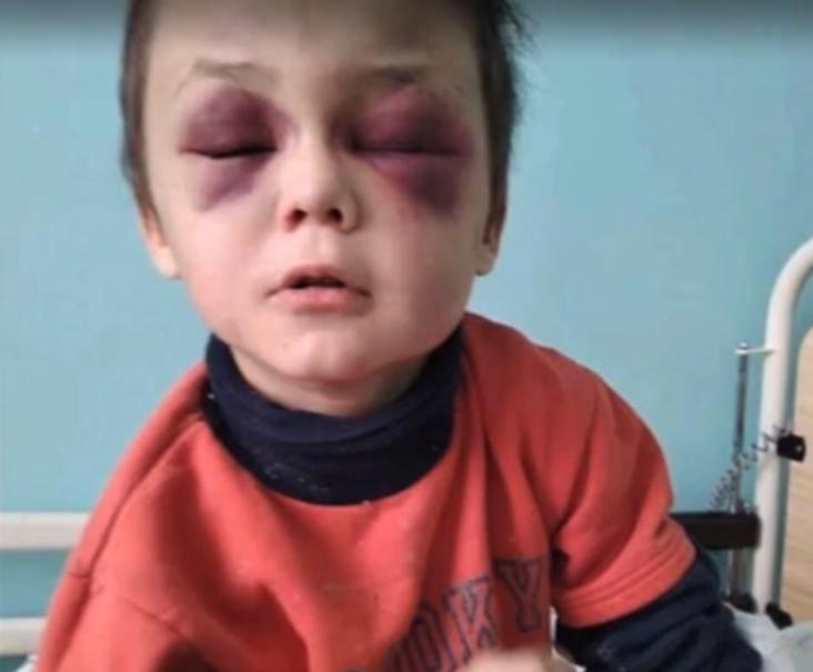 Фото хлопчика після надходження в лікарню