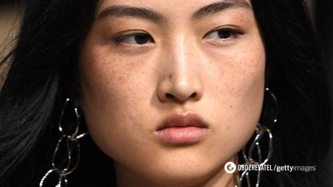 Zara потрапив у скандал через китайську модель з веснянками