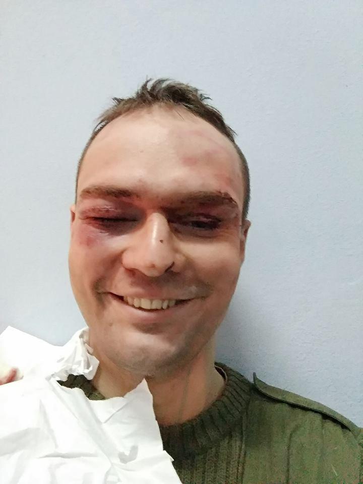 Дмитрий Резниченко после нападения