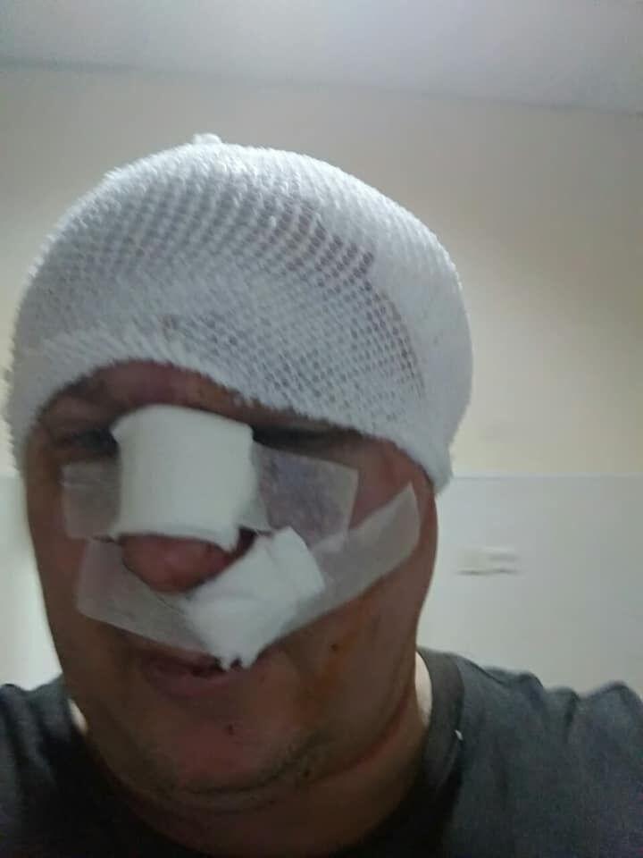 Скандальний київський догхантер загримів до лікарні. Фото 18+