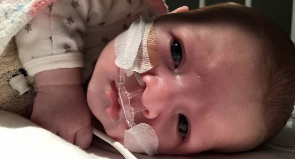 Обійми обернулися важкою хворобою для немовляти: що трапилося