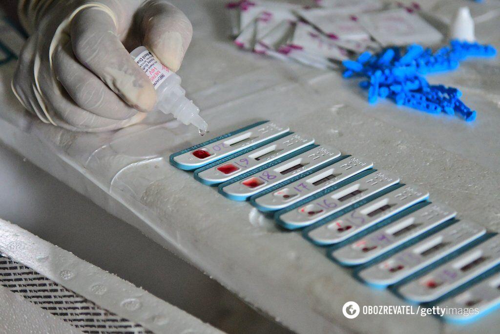 Тест на ВІЛ
