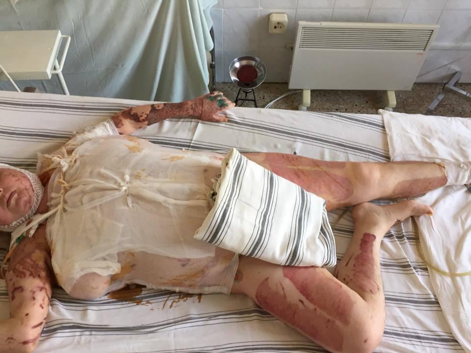 Батько Гандзюк показав страшні фото опіків загиблої. 18+