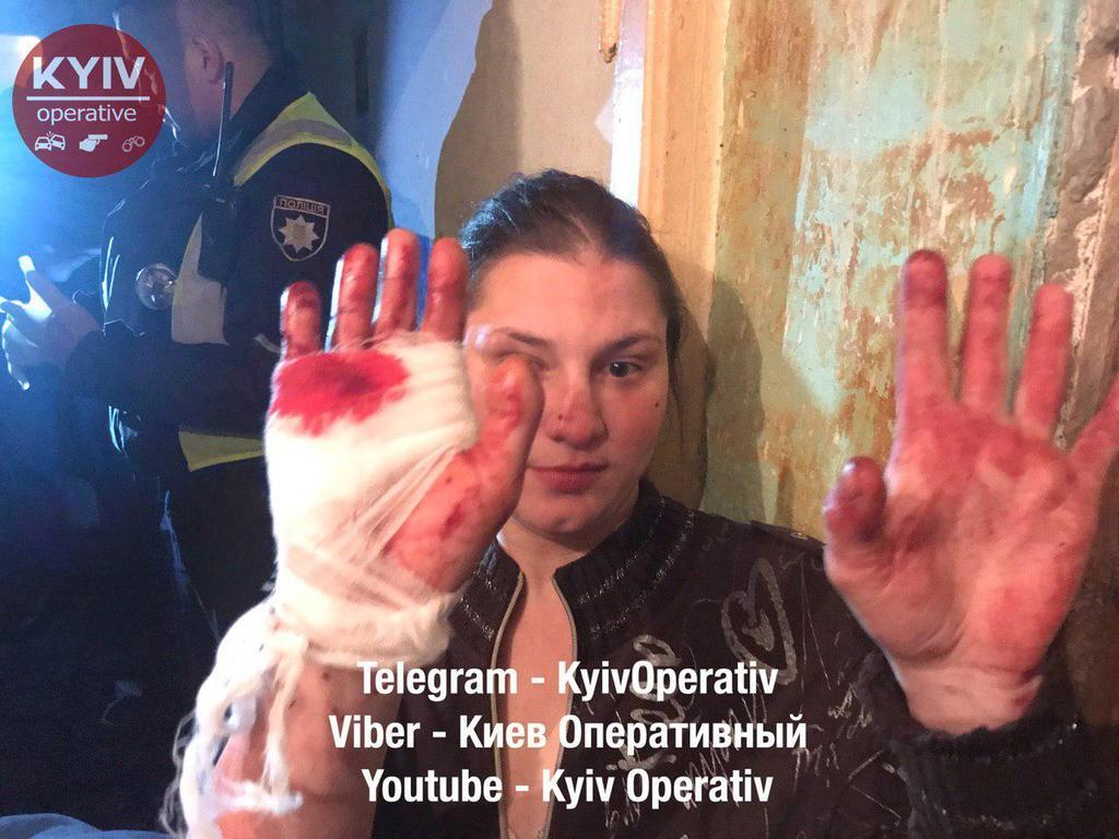 Кровь залила всю квартиру: в Киеве устроили жестокую поножовщину. Фото 18+
