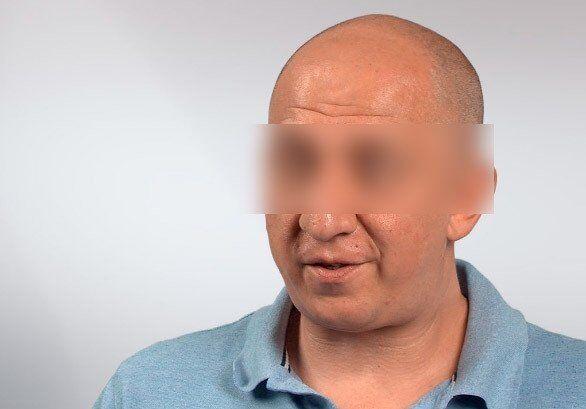 Потерпілий нейрохірург Борис П. (до нападу)