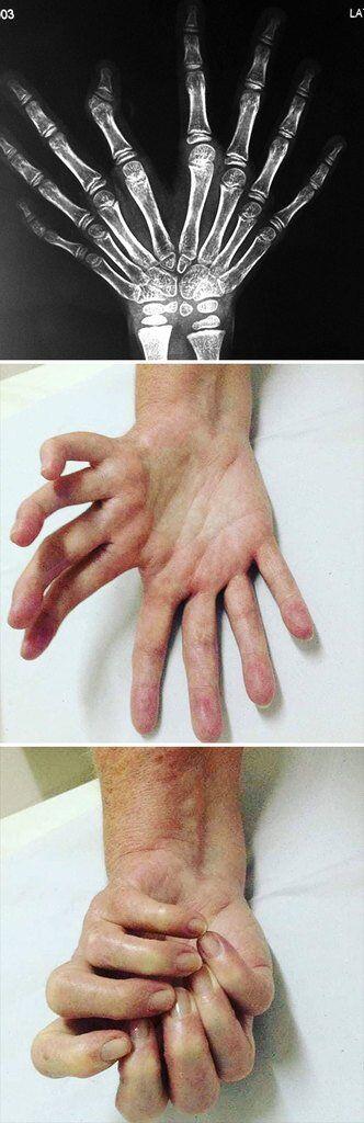 """Шесть пальцев и языки с бахромой: как выглядят """"Люди Икс"""" среди нас"""