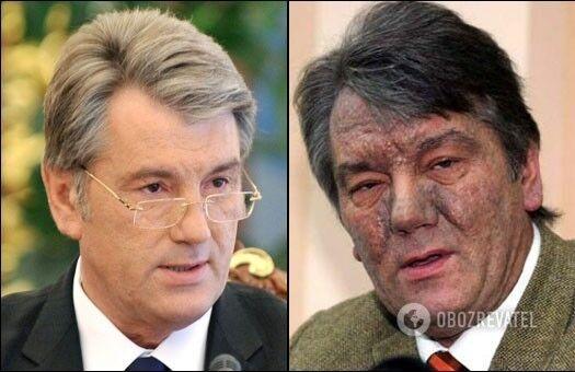 Отравление экс-президента Виктора Ющенко