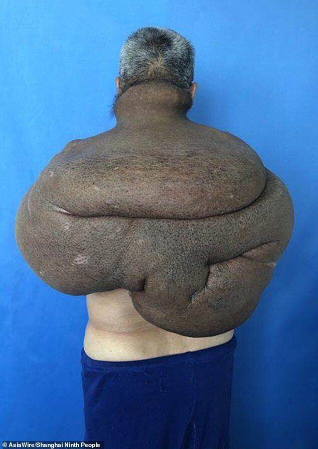Китаец 30 лет растил 15-килограммовую опухоль