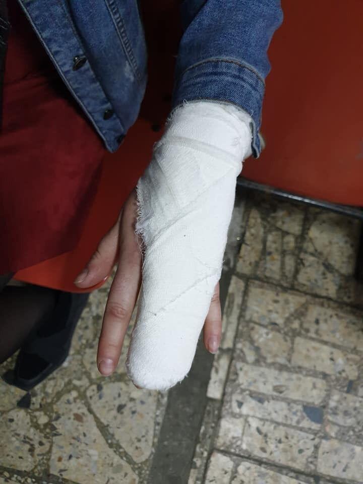 У девушки оказалась сломанной рука