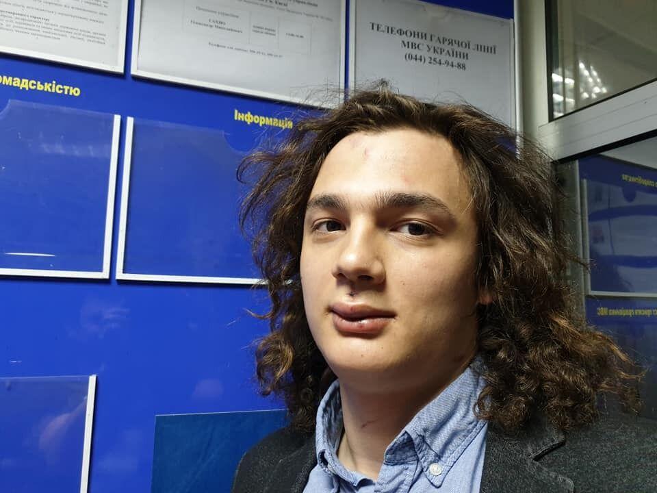 Богдан после избиения, ему наложили четыре шва на губу